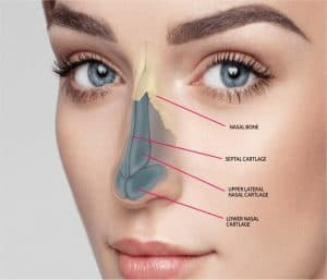 How many times can I get a revision rhinoplasty
